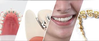 Best orthodontist in bangalore