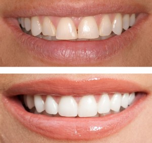 best cosmetic dentist in bangalore